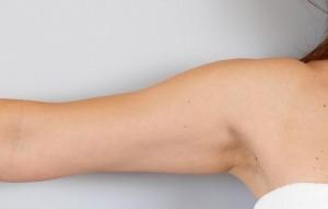Третирана ръка, 2,5 месеца след процедурата