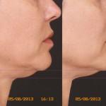 Шия и долна част на лицето, третирани с новия накрайник на Термаж. Разликата е само един час. Снимката е направена в България.