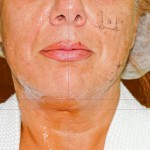 Дясната половина и шията са третирани с новия накраиник на Термаж. Забелязва се незабавно започване на стягане на колагеновите връзки. Снимката е направена в България, по време на процедура, като е обработена само дясната половина на лицето, за да се видят първоначалните разлики от действието на Термаж.