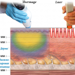 Thermage or Laser