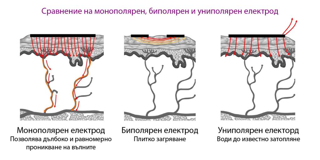 Сравнение електроди